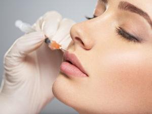 Jak wygląda powiększanie ust kwasem hialuronowym?