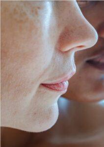 skóra twarzy z naczynkami